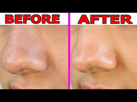 How to Shrink Large Pores on Nose Overnight    Large Pores On Nose Treatment