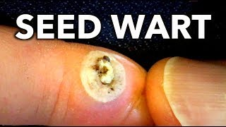 seed wart on foot removal