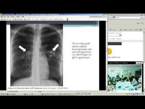 Allergic Bronchopulmonary Aspergillosis (Heather Doss, MD)