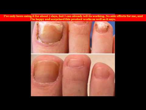 Fungal Nail Infection Medicine