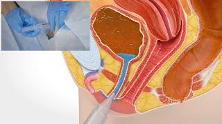 Kateterisering med kvarliggande urinkateter, kvinna