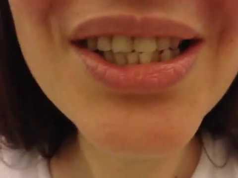 Съёмный зубной протез спустя пол года  .  отзыв # 6
