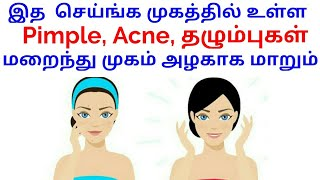 How to Remove Pimples and Acne Naturally |Get Rid of Acne Scares Naturally