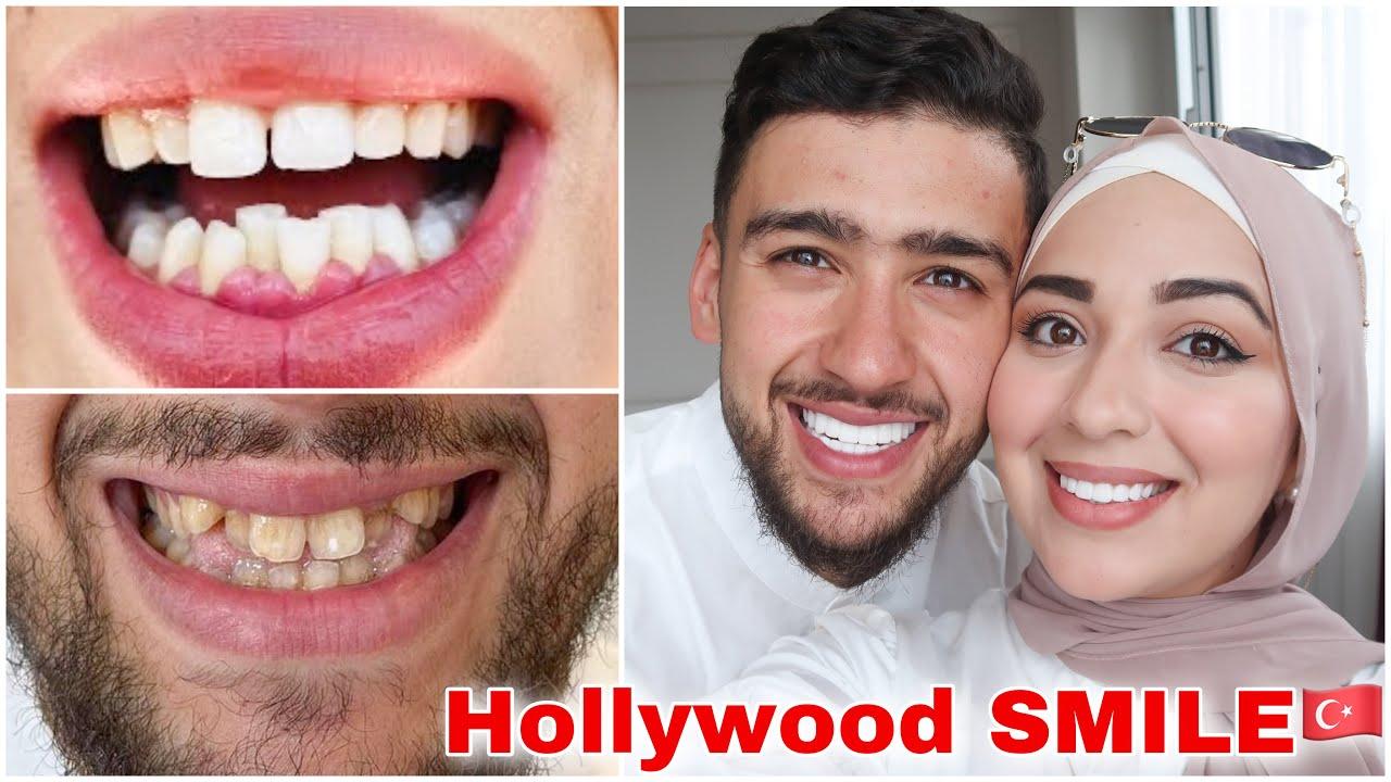 عملنا Hollywood smille 😁 في تركيا 🇹🇷 | شحال الثمن €؟ واش قلعنا السنان 🦷 ؟