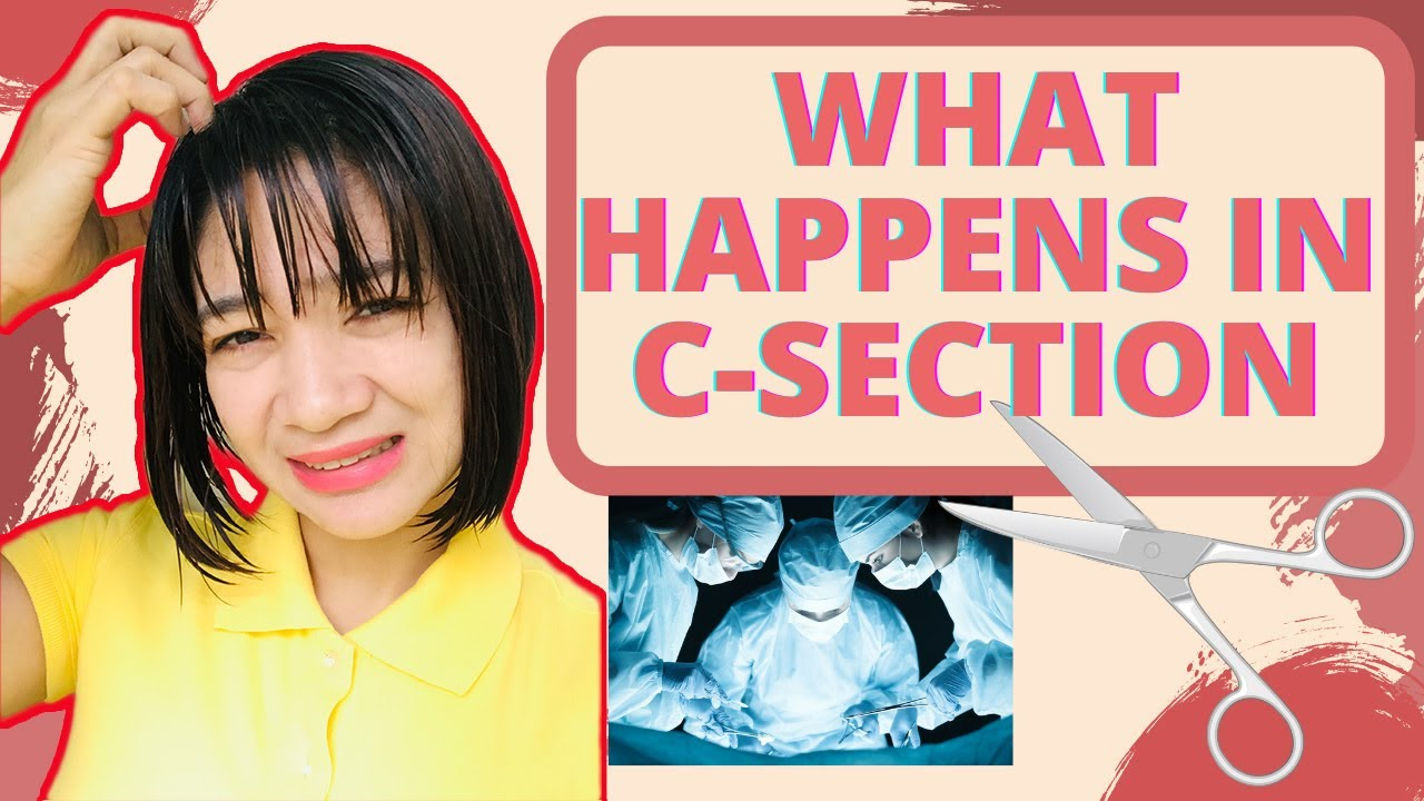 ALL about CESAREAN SECTION |BEFORE, DURING and AFTER CS | Mom Jacq
