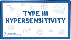 Type III hypersensitivity (immune complex mediated) - causes, symptoms & pathology