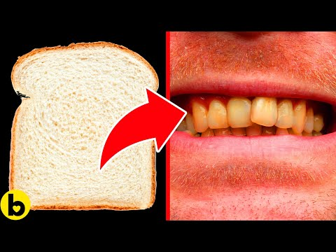 11 Foods To Avoid If You Want Beautiful, White Teeth