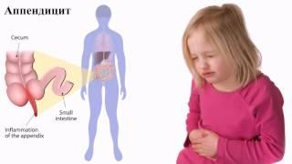 видео Антибиотики при и после аппендицита