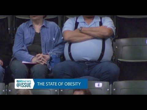 Obesity | @ISSUE | MPB