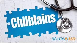Chilblains ¦ Treatment and Symptoms