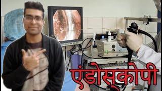 Endoscopy procedure in Hindi || एंडोस्कोपी एंड एंडोस्कोप हिंदी में || Medical Guruji