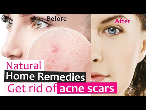 TOP natural home remedies that really works - get rid of acne and scars