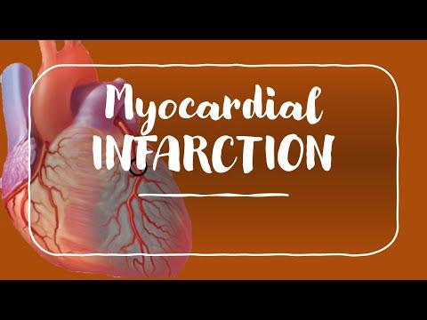 Myocardial Infarction and Angina for USMLE Step 1 and USMLE Step 2