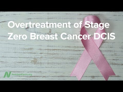 Overtreatment of Stage 0 Breast Cancer DCIS