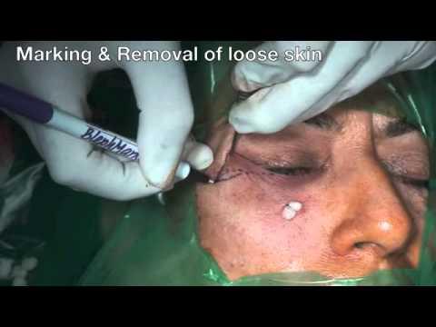 Under Eye Bags Correction: Blepharoplasty in Chandigarh