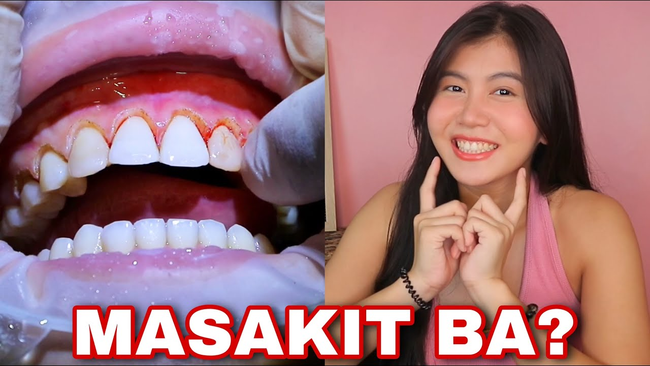 MY INSECURITY! LASER GINGIVECTOMY GUM CONTOURING SURGERY & EXPERIENCE