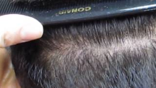 Beauty of the FUE Hair Transplant Thumbnail