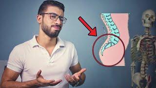علاج مشكلة بروز المؤخرة عند الرجال