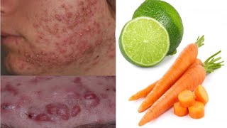 DIY Carrot Face Mask for Acne Dark Spots And Brightening Skin DIY Beauty Life