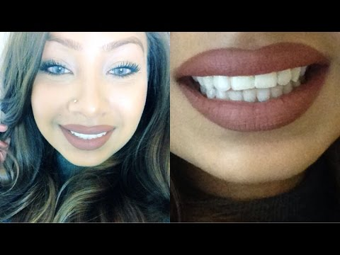 TEETH BONDING | FIXING GAP TEETH WITHOUT BRACES