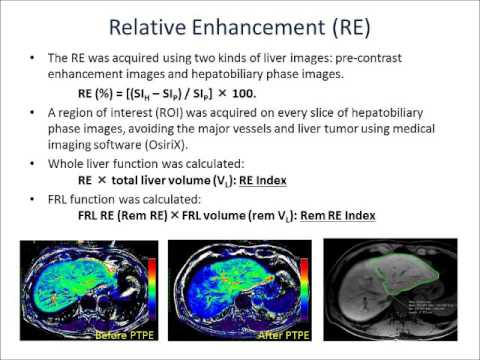 [Listen to Authors] Preoperative Estimation of FRL Function on Gd-EOB-MRI