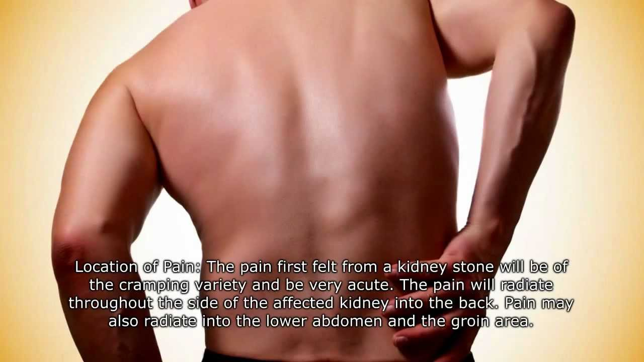 Kidney health know the signs and symptoms of kidney stones youtube ccuart Gallery