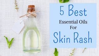 5 Best Essential Oils For Itchy Skin Rash| That Instantly RELIEVES & SOOTHES