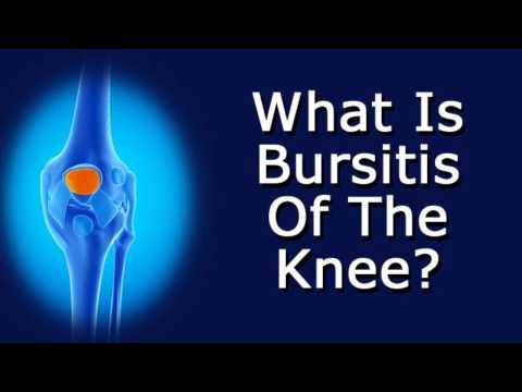What Is Bursitis Of The Knee?