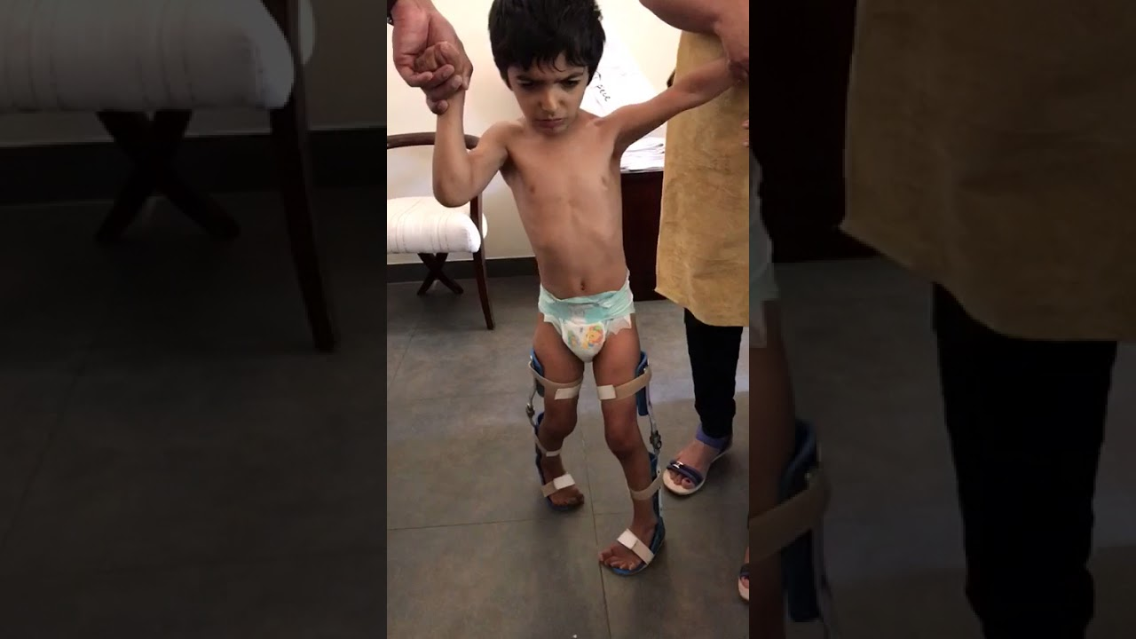 A child aged six  with Cerebral Palsy walking with support after 8 weeks of treatment.