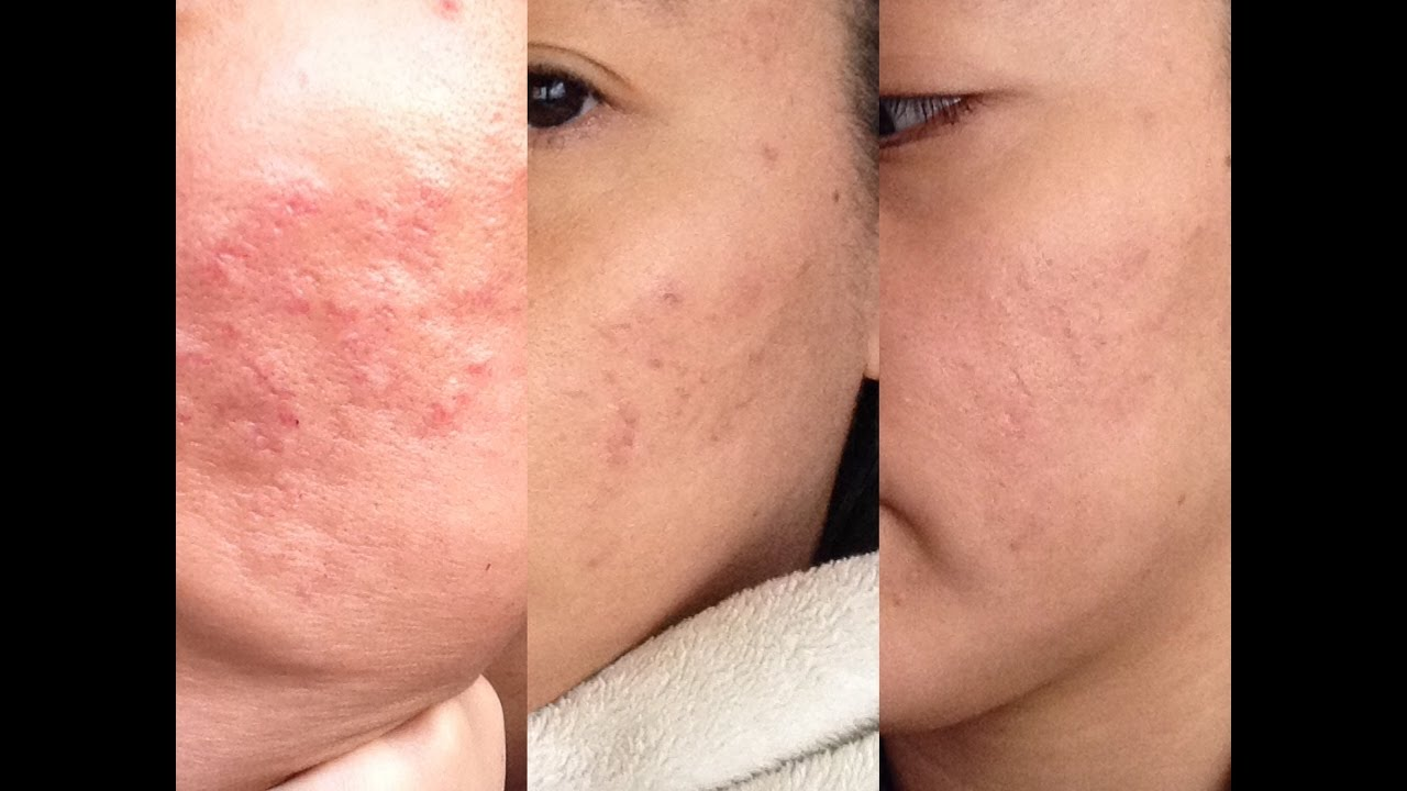 Acne Scar Update And Juvederm Fillers Youtube