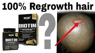 BIOTIN HAIR GROWTH PILL - Regrowth hair BIOTIN SUPPLEMENT(REVIEW)