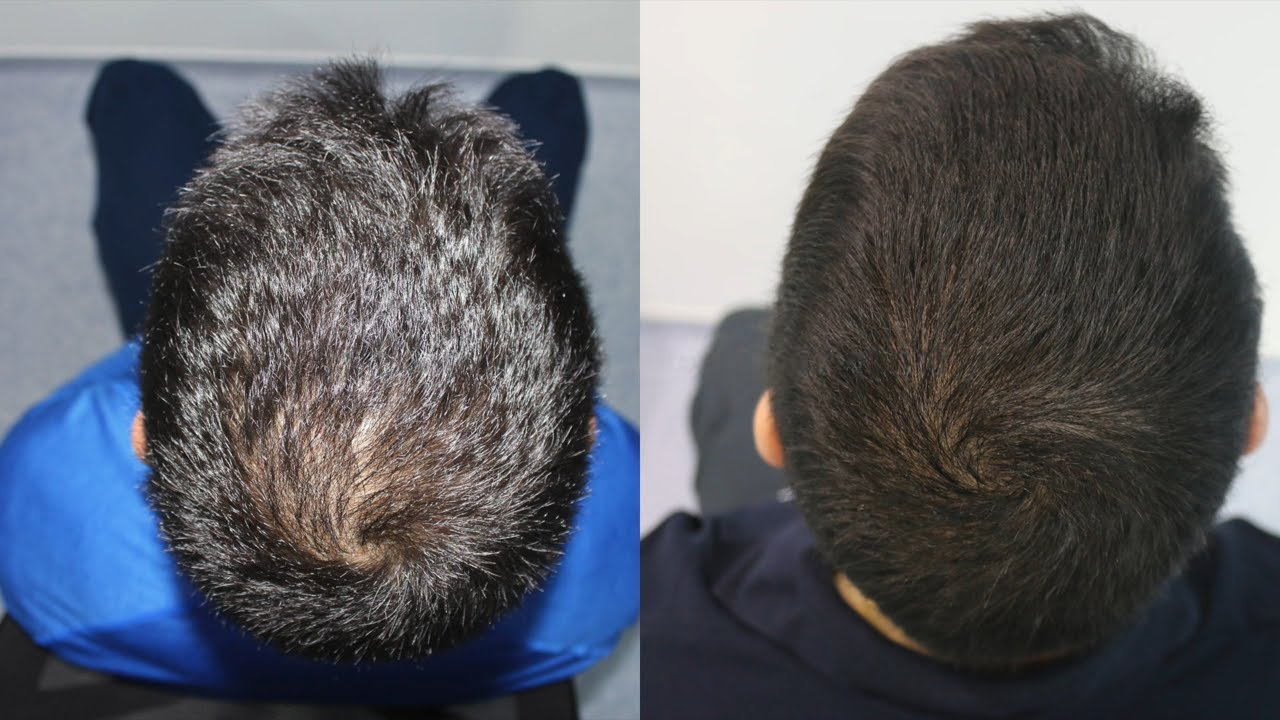Hair Transplant Result With 2300 Grafts Crown Receding Hairline