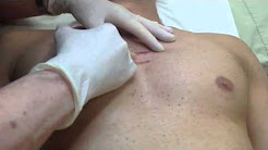 Cortisone injections for keloid scars