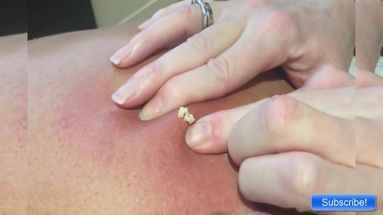 Good Popping Zit || Back Cyst - YouTube