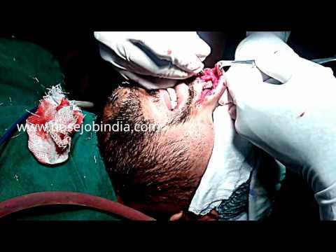 Nose Plastic Surgery In Bangalore