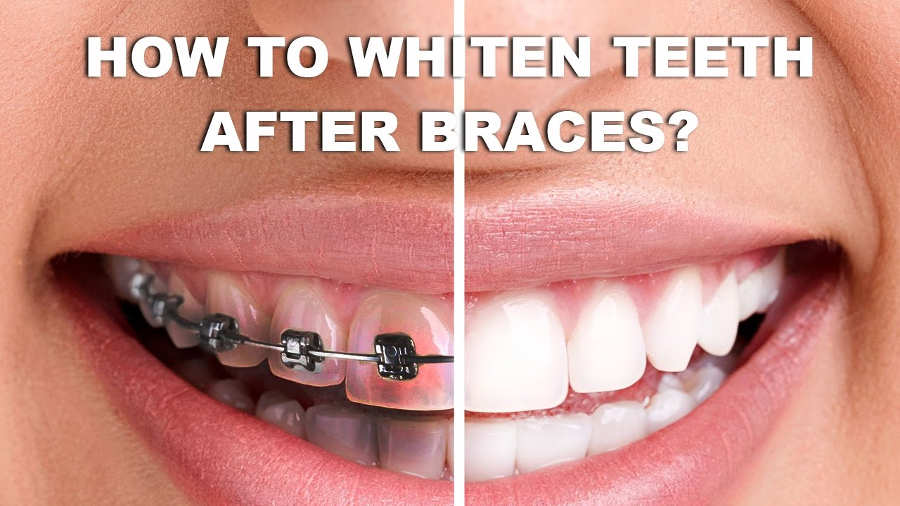 How To Whiten Teeth After Braces Whiten Teeth After Braces At Home