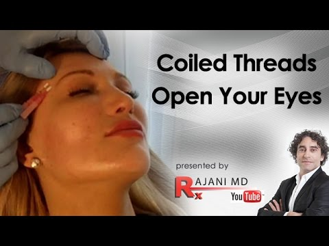 Coil PDO Threads-The Eye Lift-Dr Rajani