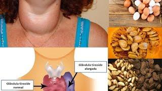 Como regular a TIREOIDE naturalmente alimentos que regula e desregula por Nina Della Rosa