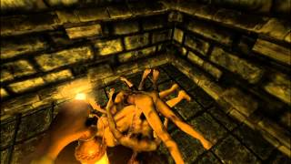 Time of Death Episode 104: Separate Ways (Amnesia: Quiet - Part 3) [FINALE]
