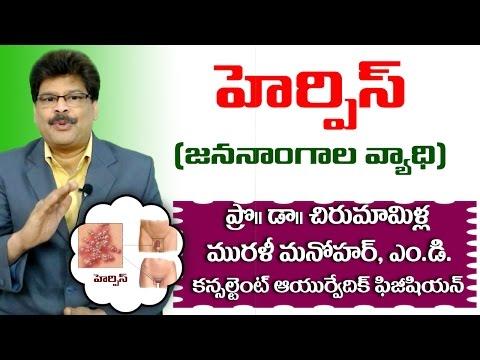Herpes Genital Herpes How To Treat