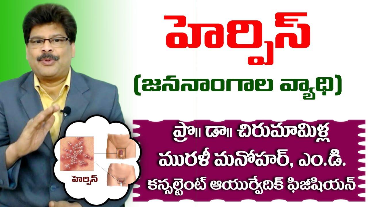 Genital Herpes | Ayurvedic Treatment | Prof  Dr  Murali Manohar  Chirumamilla, M D  (Ayurveda)