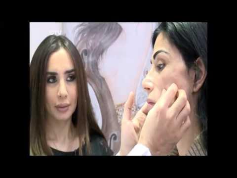 داليا والتغيير  Silicon problem Fix in beirut Lebanon by Dr Toni Nassar