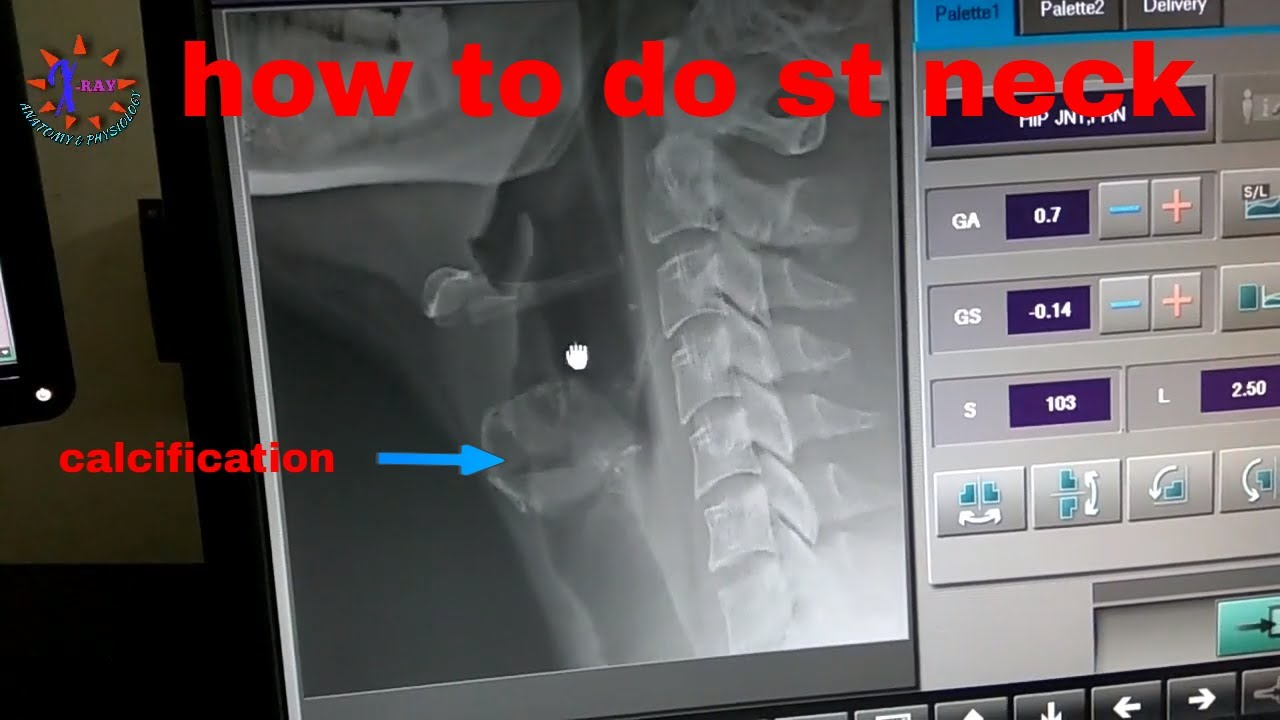 SOFT TISSUE NECK X-RAY FOR FOREIGN BODY , ANATOMY & PHYSIOLOGY PART ...