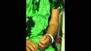 Treatment for stroke - paralysis b Dr. Amina