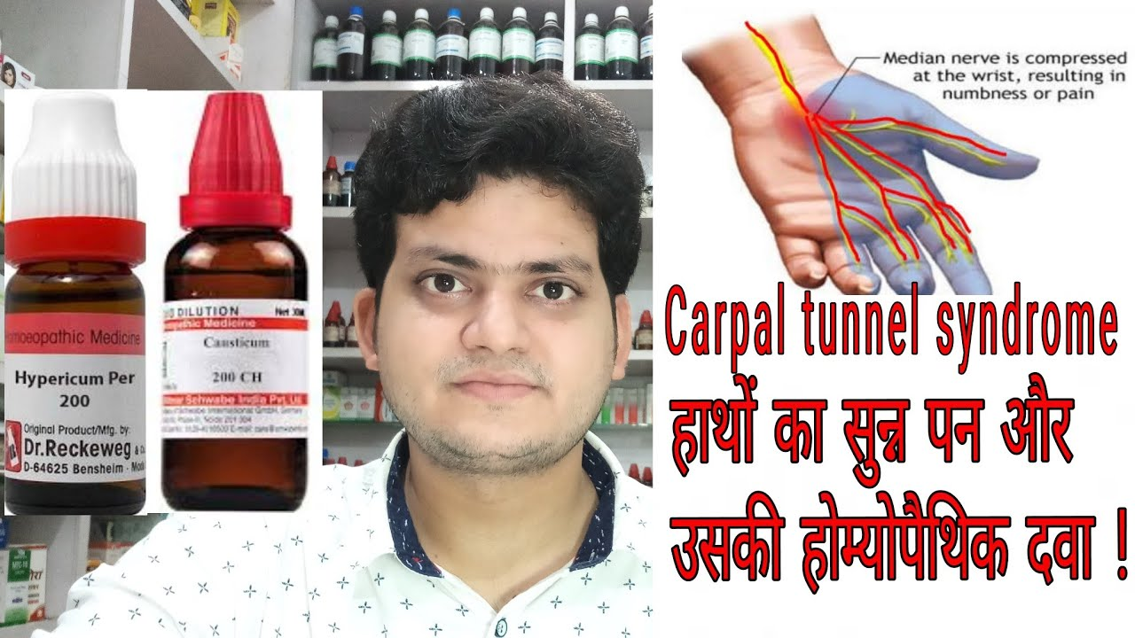 Carpal tunnel syndrome ! Homeopathic medicine for carpal tunnel syndrome ?