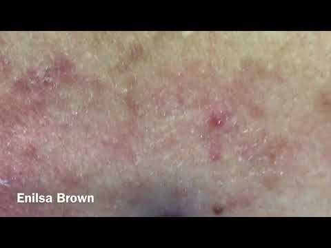 Christian&39;s  Acne Back Treatment  Blackheads Extractions