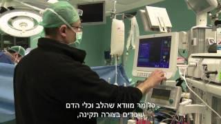 הרדמה כללית  - הרדמה לפני ניתוח