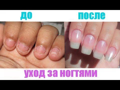 Как ускорить рост ногтей в домашних условиях за 2 дня