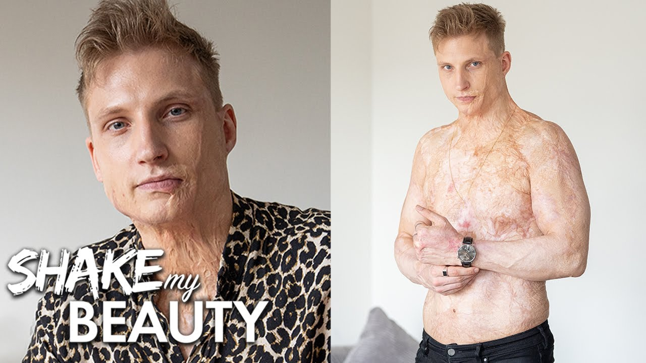 I Was Electrocuted And Burned 70% Of My Body | SHAKE MY BEAUTY