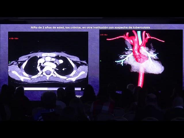 TC en anillos vasculares y sling pulmonar. Carlos Ugas